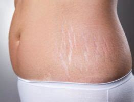 staph infection on stretch mark picture 10