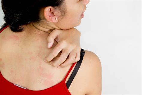 gamot sa arthritis symptoms picture 3