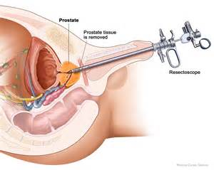 pictures and procedure for prostate mage picture 5