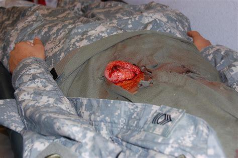 ruptured bowel picture 3