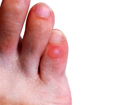 treating toe nail fungus picture 6