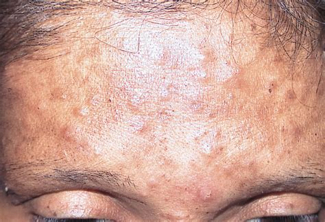 fungal skin rash picture 7