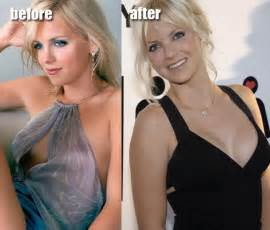 forced breast implants picture 5