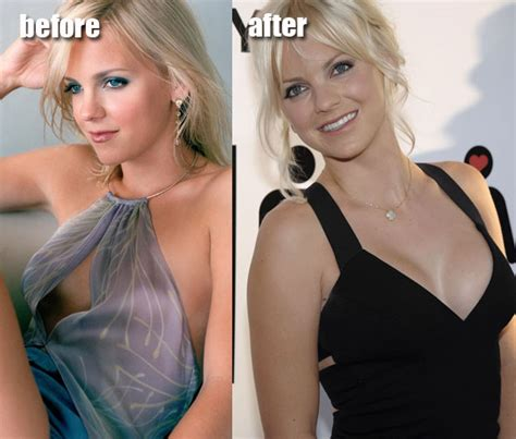 forced breast enlargement picture 7