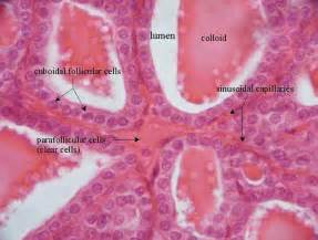 colloid and follicular cells in thyroid picture 17