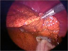 canine liver cancer picture 3