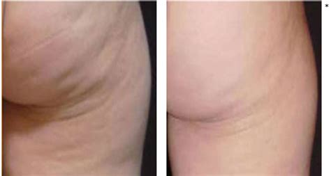 cellulite treatment san diego picture 7