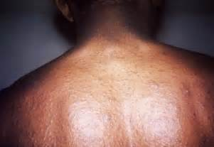 rosacia skin condition- picture and description picture 1