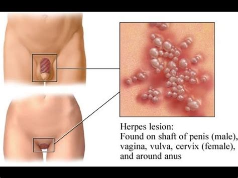 can shaving cause herpes picture 5
