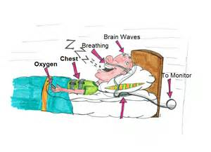 protocol for scoring hypopneas in polysomnography sleep study picture 13