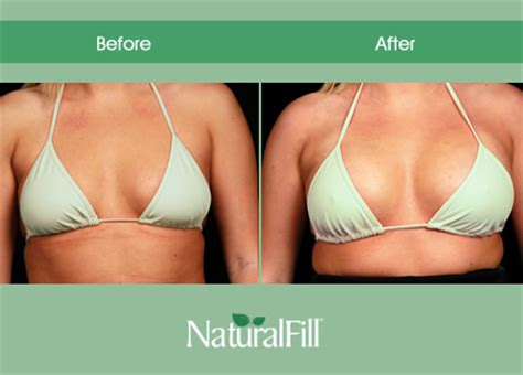 breast enhancement via fat transfer picture 6