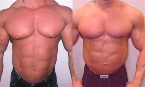 male female breast enhancement picture 3