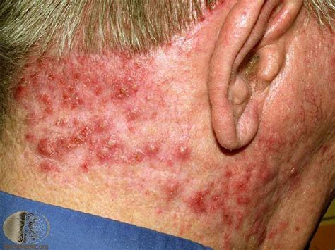 lymph nodes back of neck from acne picture 1