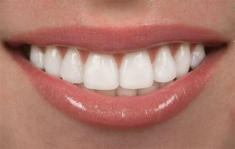 dentist porcelain teeth picture 14