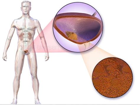 bladder cancer research picture 6
