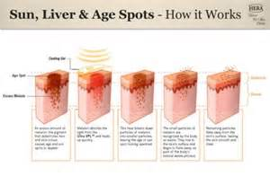 how to treat liver spots picture 1
