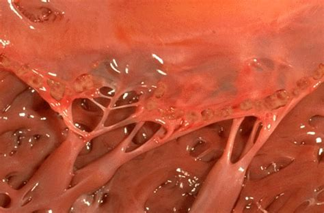 yeastrol for cytolytic vaginosis picture 7