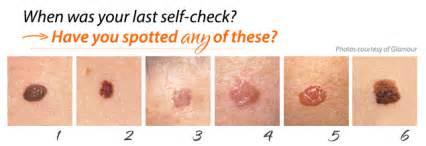 dermatologist skin tumors picture 9