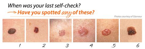 skins of skin cancer picture 6