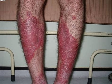 psorasis herbal from bahamas picture 1