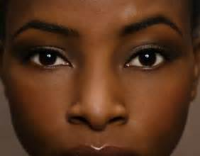 african american girl looking for acne treatment creams picture 6