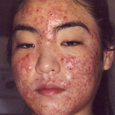 skin acne picture 1