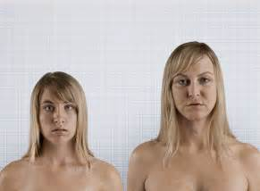 transgendered woman breast development picture 6