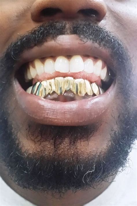 fulton street gold teeth picture 14