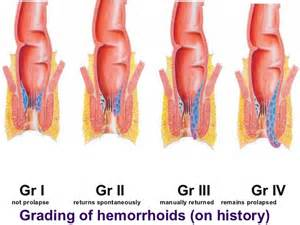 hemorrhoidectomy video picture 11