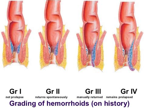 hemorrhoid cures picture 6