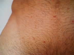 hair growth from genital wart picture 11
