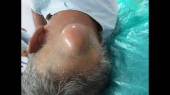 ayurvedic treatment for scalp cyst picture 14