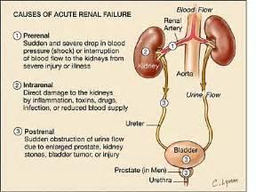 disease acute cerbvas ill-defined definition picture 14