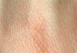 an skin picture 6