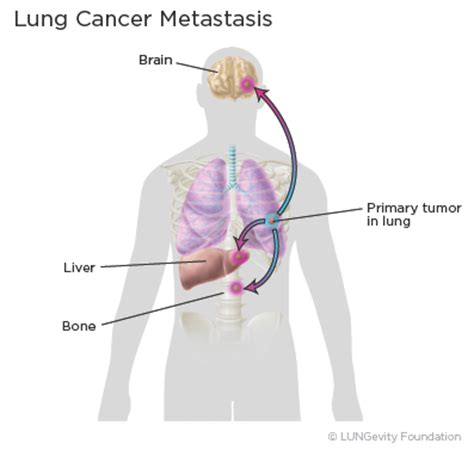 metastatic cancer with liver and lung metastas picture 3