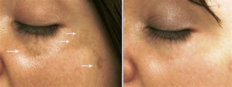 liver spots + clinique picture 5