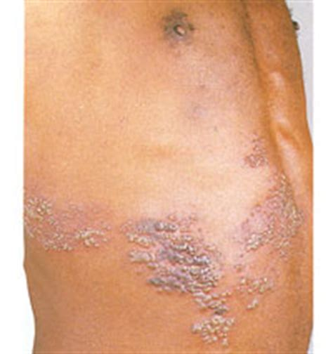 herpes on breast area picture 3