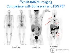 Prostate cancer nuclear medicine picture 10