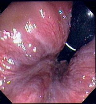 do hemorrhoids itch picture 9