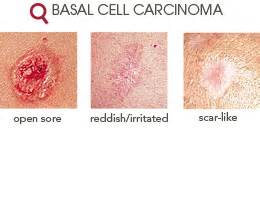 basal skin cancer symptoms picture 9