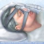 bi-pap machine used in sleep apnea picture 2