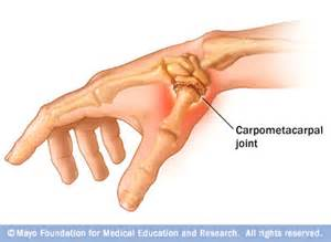 basilar joint arthritis picture 10