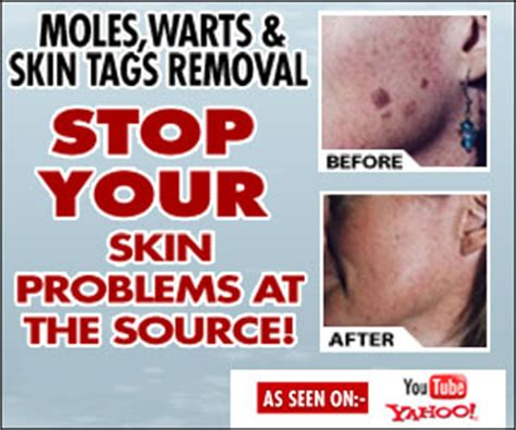 warts moles skin tag removal in ritm picture 4