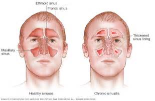 viral infection symptoms mayo clinic picture 2
