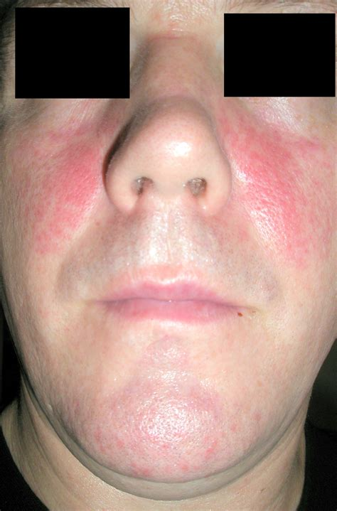 red skin marks on face picture 3