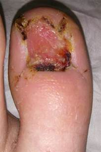 laser treatment for foot fungus mn picture 2