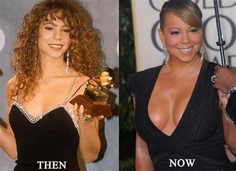 who did the breast implants on beshine picture 1