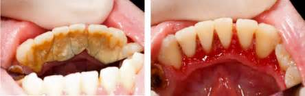 cleaning behind teeth picture 3