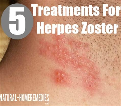 treatment for herpes zoster picture 2