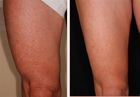 surgical procedure to tighten cellulite skin on thighs picture 5